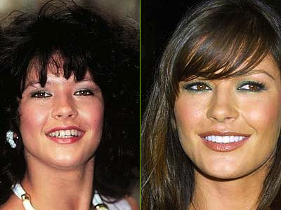catherine-zetta-jones-teeth-before-after-cosmetic-dentistry1